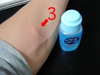 蚊に刺された腕(もう1箇所)